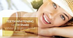 Teeth Whitening is the fast and easy way to get your smile positively sparkling for summer. Contact us for more and to book your appointment at 04 White Smile, Teeth Whitening, Your Smile, Appointments, Clinic, Dental, Dubai, You Got This, Positivity