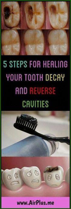 Oral Health, Dental Health, Teeth Health, Dental Care, Gum Health, Reverse Cavities, Remedies For Tooth Ache, Receding Gums, Oral Hygiene