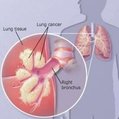 Effective Natural Cures For Lung Cancer. Current treatments for lung cancer are not very effective, anything with the potential to help should be considered.