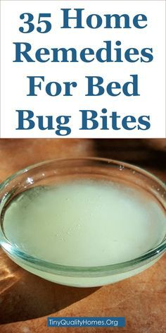 How To Get Rid Of Bed Bug Bites 35 Home Remedies Bugs Remedies