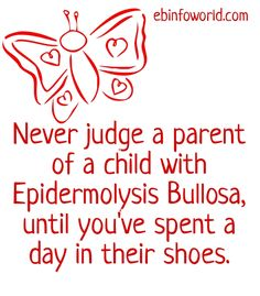 You Know you're an EB (Epidermolysis Bullosa) parent when...