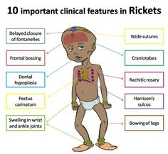 rickets symptoms and diagnosis Learn all about rickets, symptom, treatment, doctors, diagnosis, home remedies, question & answer find out causes of rickets only at lybrate.