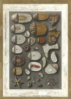 Max Brödel, Stones from Bladder and Kidney, 1909