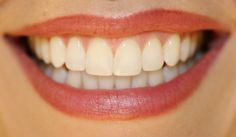 At Healthy Holistic Living we search the web for great health content to share with you. This article is shared with permission from our friends at FitLife.tv. By Drew Canole There are few things more attractive than a nice set of pearly whites and a warm smile! Regardless of the...More