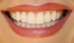 Il existe peu de choses plus attrayantes qu'une belle rangée de dents nacrées et un sourire chaleureux! Quelle que soit la forme de votre sourire, je pense que vous êtes beauet je vous encourage à l'utiliser souvent! Les sourires sont GRATUITS et ont le pouvoir d'apporter tant de joie au monde. Aujourd'hui, je veux vous …