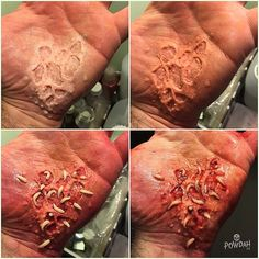 Making of the feasting maggots using @briansipemakeup Gotflesh transfers