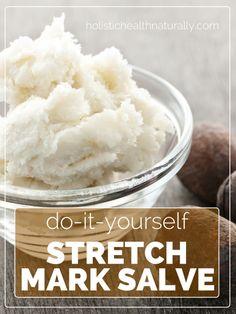 DIY: Stretch Mark Salve   holistichealthnaturally.com