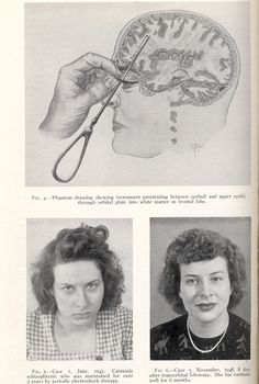 Welcome to the lobotomy ladies... Men had the right to demand their wives or daughters be lobotomized against their will. (Joseph Kennedy, father of JFK, had his daughter lobotomized.)
