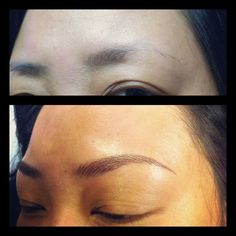 11. Before / After Left Brow