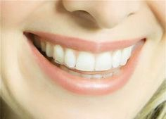 Teeth Straightening Treatments - Plymouth City Centre Plymouth, Crooked Smile, Teeth Straightening, Orthodontics, Straightener, Centre, City, Layout, Type