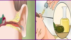 Remove The Ear Ache And Ear Infection With Natural Cures ! - Run Healthy Lifestyle How To Get Rid, How To Remove, Ear Infection Home Remedies, Tinnitus Symptoms, Natural Cures, Au Natural, Natural Living, Natural Health, Back Pain