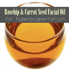 Rosehip and Carrot Seed Oil Facial Serum For Hyperpigmentation | http://improvedaging.com/rosehip-and-carrot-seed-oil-facial-serum-for-hyperpigmentation/