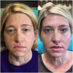 Restylane for tear trough, Voluma for cheek enhancement and Botox to all areas. Treatment by Gina Jones, in Austin.