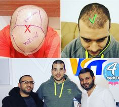 4 months #hairgrowth of our client from Malaga Spain. Tag one of your friend who needs hair transplantation! @mens.magazine #hair #hairtransplant #clinic #trapianto #trapiantocapelli #trasplantedepelo #trasplantecapilar #trasplantecapilarfue