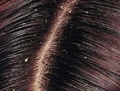 Dry scalp is an over shedding of dead dehydrated skin cells of the scalp caused … – dandruff causes Home Remedies For Dandruff, Hair Dandruff, Natural Home Remedies, Itchy Scalp, Dry Scalp, Dry Skin, How To Treat Dandruff