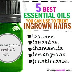 Top 5 Essential Oils for Ingrown Hairs The best way to treat ingrown hairs - use essential oils! Lemongrass essential oil is.The best way to treat ingrown hairs - use essential oils! Lemongrass essential oil is. Treat Ingrown Hair, Ingrown Leg Hair, Ingrown Hair Remedies, Ingrown Hair Removal, Prevent Ingrown Hairs, Diy Ingrown Hair Serum, Essential Oils For Hair, Essential Oil Uses, Facial Masks