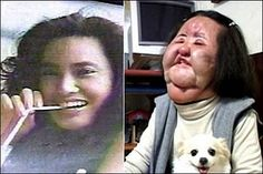 she injected cooking oil into her face, because she could not afford surgery, how sad,she looked fine before.