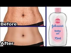 In 5 Days Remove Stretch Marks Completely Beauty Tips For Glowing Skin, Health And Beauty Tips, Best Stretch Mark Removal, Strech Mark Removal, Skin Tips, Skin Care Tips, Stretch Mark Remedies, Remedies For Strech Marks, Stretch Mark Treatment