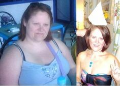weight loss - gastric bypass