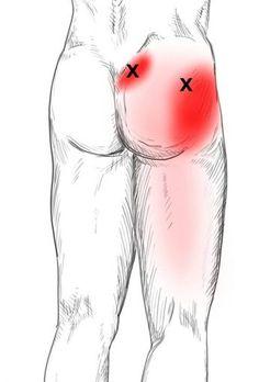 Piriformis Schmerzen & Triggerpunkte selbst behandeln