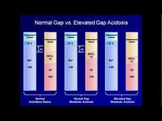 Eric Strong of Standford University: The Anion Gap (Understanding ABGs - Lecture Standford University, Anion Gap, Metabolic Acidosis, Np School, Acid Base Balance, Critical Care Nursing, Medical Laboratory Science, Respiratory Therapy, Medicine