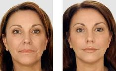 Milagro Anti-Arrugas Anti Aging Facial, Best Anti Aging, Anti Aging Cream, Tv Doctors, Aging Backwards, Ideal Body, Anti Cellulite, Wrinkle Remover, Dark Circle