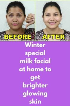 Winter special milk facial at home to get brighter glowing skin Step 1 – Cleansing In a bowl take 1 teaspoon of glycerin Add 3 teaspoon of raw milk Mix it well Dip a clean cotton ball in this and apply it all over your skin Leave for 2 minutes and then wash you face with plain water Step 2 – Scrubbing Take 1 and 1/2 …