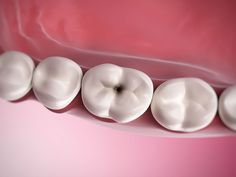 Three factors to occur #tooth #decay: -Sensitive teeth-Plaque Buildup and bacteria-Rich intake of sugary foods and drinks