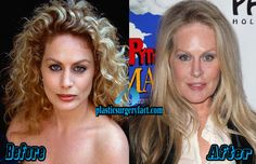 Beverly D Angelo Plastic Surgery Before and After | http://plasticsurgeryfact.com/beverly-d-angelo-plastic-surgery-2015-photos/