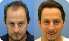 Growth rate of hair after hair transplant