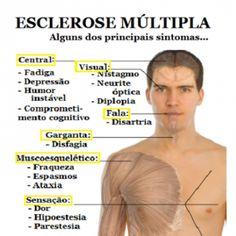 Esclerose múltipla mostra sinais mais cedo do que se pensava Um novo estudo revelou que os pacientes com esclerose múltipla podem demonstrar que algo de errado está a passar-se cinco anos antes de a doença se desenvolver