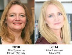 From Hypothyroid to Healthy...HECK YES it's possible #hypothyroid #hypothyroidism #thyroid HypothyroidMom.com