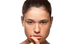 How to Get Rid of Age Spots and Freckles See this age-spot information and how people have resolved their problems.