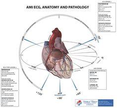 EKG Anatomy and Pathology Nursing Tips, Nursing Notes, Acute Coronary Syndrome, Ecg, Heart Anatomy, Critical Care Nursing, Cardiac Nursing, Emergency Medicine, Emergency Care