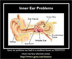 Tinnitus inner ear pressure washer