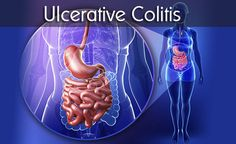 What Is Ulcerative Colitis: Symptoms, Causes, Diagnosis, Treatment