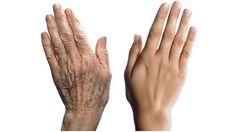 las cremas y productos no resuelven. Entonces, te recomendamos probar con tratamientos naturales para mejorar el cuidado de tus manos y borrar esas arrugas