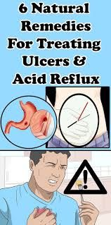 6 Natural Remedies For Treating Ulcers and Acid Reflux - Health Remedies Natural Home Remedies, Natural Healing, Natural Oil, Natural Beauty, Infection Des Sinus, Stop Acid Reflux, Thyroid Problems, Varicose Veins, Natural Remedies