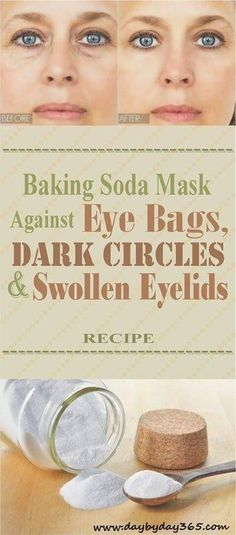 REPIN THIS RECIPE!!! Baking Soda Mask Against Eye Bags, Dark Circles And Swollen Eyelids...