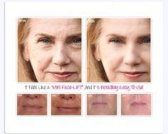 contains the advanced scientifically proven and patened ingredient Matrixyl 3000 is a face firming peptide clinically proven to reduce the appearance of fine lines and wrinkles. REVITOL is clinically proven to work in just minutes! REVITOL is perfect for immediate relief of problem dry areas and perfect for daily use! REVITOL will keep your skin healthy, moist and hydrated. Daily use of REVITOL will prevent dry skin, itching, peeling and cracking, and help maintain skin suppleness and ...