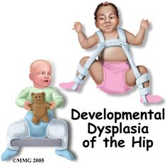 Pavlik Harness - Developmental Dysplasia of the Hip