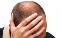 Male pattern baldness may be an indicator of men's susceptibility to fatal prostate cancer, new research suggests.
