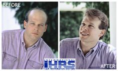 Do you want an amazing transformation like this? Let IHRS help make it happen! Visit hair4me.com/... for a FREE consultation. #hairloss #hairrestoration #hairreplacement #balding#menshairloss #IHRS#internationalhairrestorationsystems