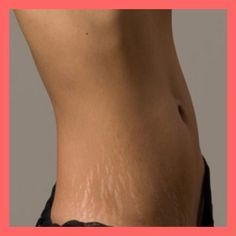 It effectively neutralizes free radicals -- stopping their destructive effects on your skin. That's why it is a very potent healthy, chemical-free, anti-aging lotion. Stretch Mark Remedies, Stretch Mark Removal, Beauty Care, Beauty Skin, Health And Beauty, True Beauty, Skin Tips, Skin Care Tips, White Stretch Marks