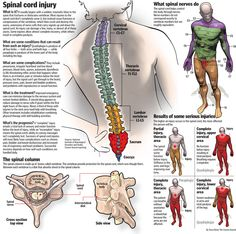 Graphic: Spinal Cord Injury | The Courier-Journal | courier-journal.com