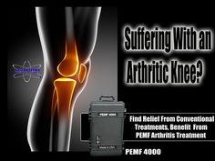 Being exposed to PEMF treatment can successfully improve arthritic conditions (mobility and decreased pain), at any level.