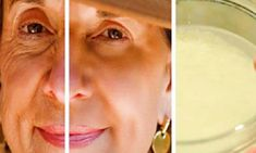 Homemade Cream Recipe, Prévenir Les Rides, Wrinkle Remedies, Prevent Wrinkles, Wrinkle Remover, Homemade Skin Care, Tips Belleza, Belleza Natural, Anti Aging Cream