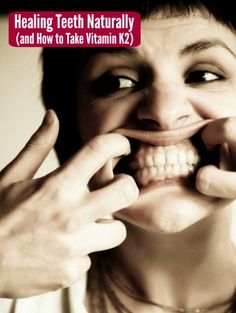 Miracles Happen! Healing Teeth Naturally (and How NOT to Take Vitamin D) Teeth Health, Healthy Teeth, Bone Health, Dental Health, Oral Health, Dental Care, Health And Nutrition, Health And Wellness, Healthy Food