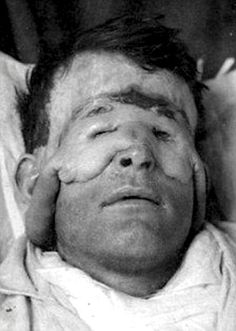 Plastic surgery for extreme disfigured soldiers in the First World War.