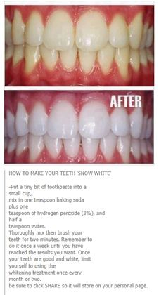 whiter teeth                                                                                                                                                                                 More